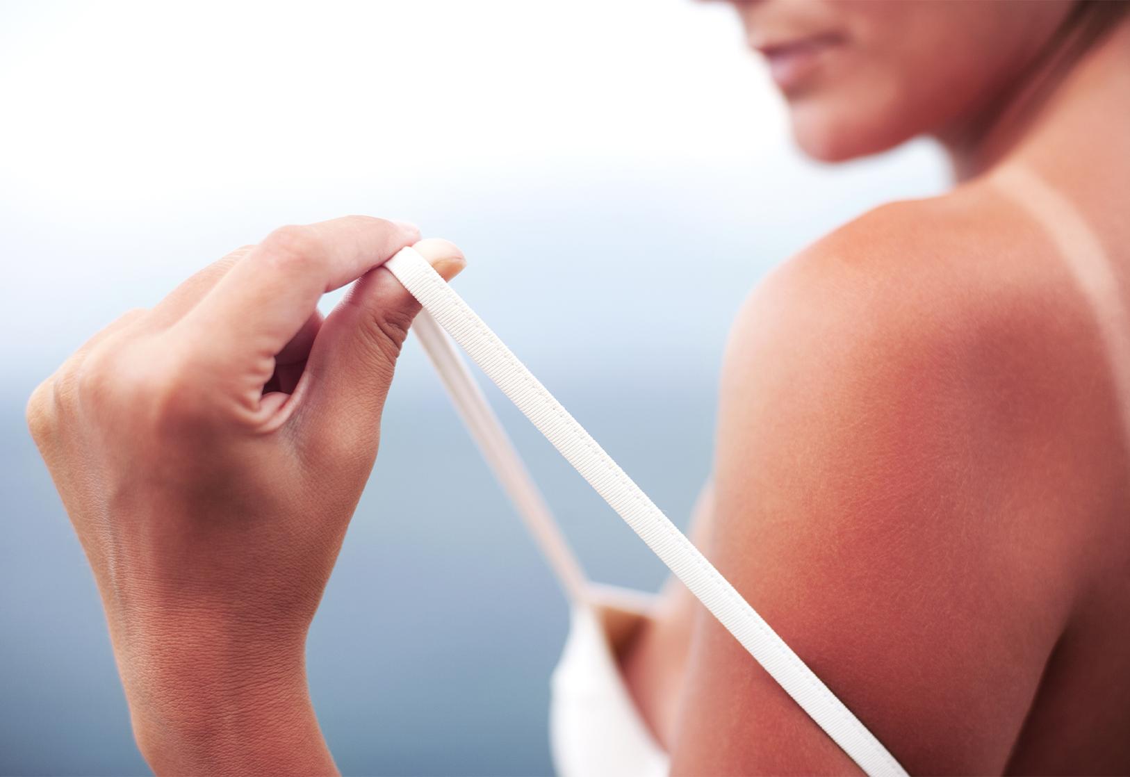 Jak chronić skórę w czasie ekspozycji na słońce