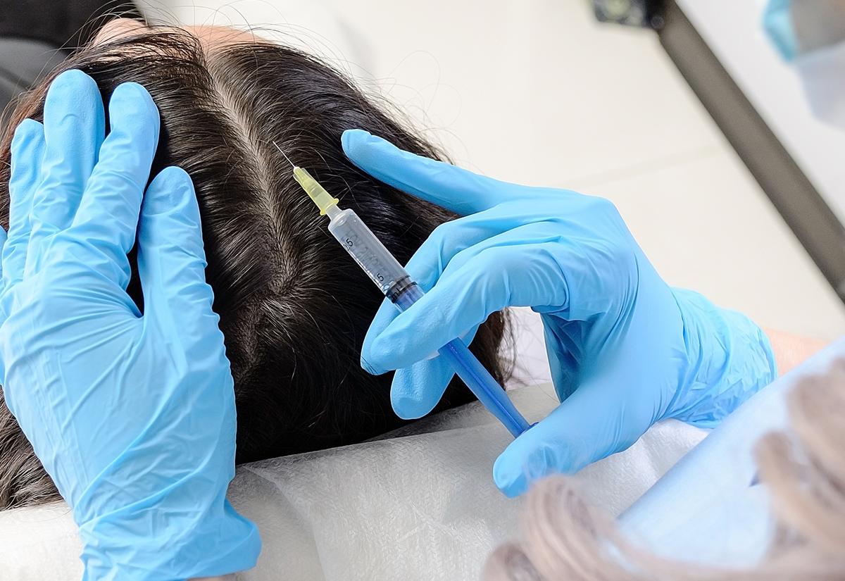 Profesjonalna pielęgnacja, czyli mezoterapia mikroigłowa skóry głowy w pigułce