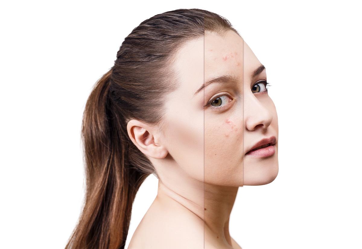 Trądzik u dorosłych – leczenie, zabiegi i profilaktyka