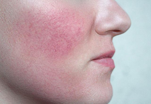 Jak pielęgnować skórę naczyniową?